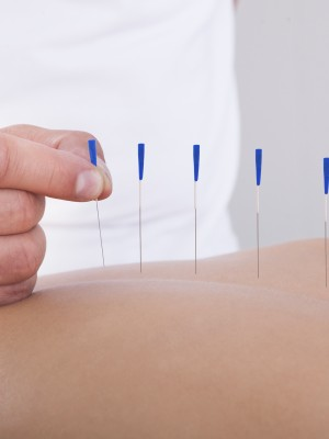 Young Beautiful Woman In An Acupuncture Therapy In A Spa Center